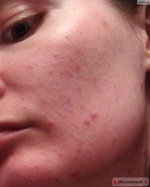 Сыпь на лице причины