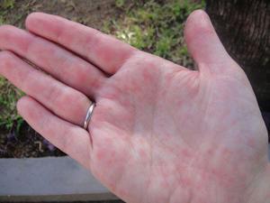 Сыпь на руках в виде прыщиков: все причины с фото и что делать