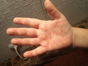 Причины проявления симптома