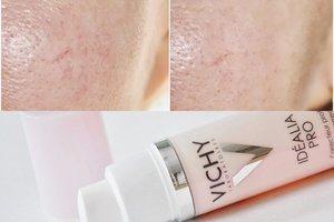 Средства для отбеливания кожи