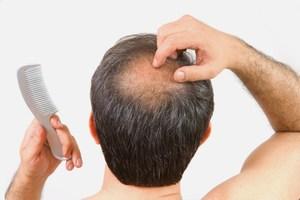 Выпадение волос у мужчин лечение