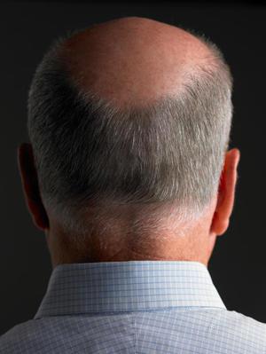 Почему выпадают волосы на голове у мужчин