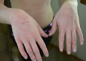 Почему трескается кожа на пальцах рук: причины и лечение