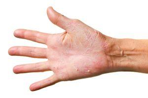 Сухая кожа рук- леченеие