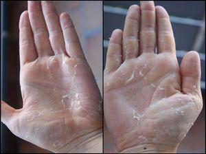 Очень сухая кожа рук с трещинами - как лечить