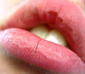 Шелушатся губы