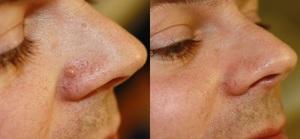 Разновидности бородавок на лице