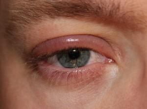 Причины отека век глаз