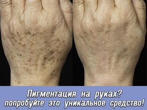 Пигментные пятна на руках после 50 лет