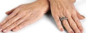 Как вывести пигментные пятна на руках