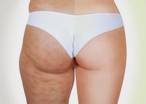 Процедуры для упругости кожи