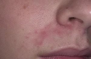 на лице появились красные пятна и шелушатся