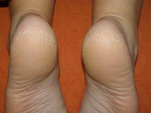Причины появления трещин на пятках