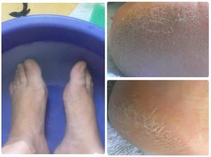 Ванночки для кожи на ступнях ног