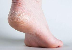 Маски для кожи ступней