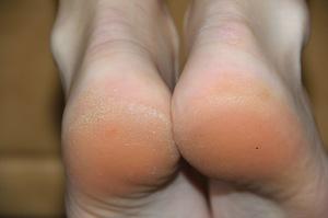 Как ухаживать за кожей ступней