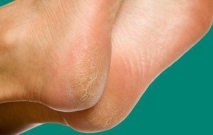 Причины шелушения кожи на ступнях