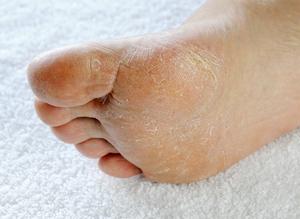 Почему шелушится кожа на ступнях