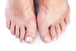 Шелушится кожа на ступнях