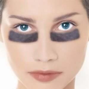 Что делать с синяками под глазами