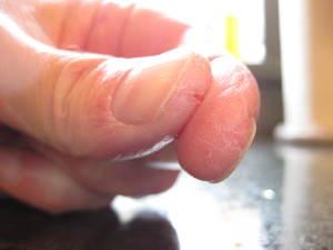 Почему трескается кожа на ладонях