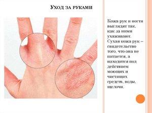 Почему трескается и лопается кожа на руках