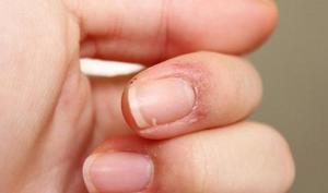 Почему трескается кожа на руках