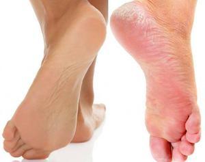 Сухие пятки ног