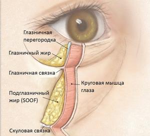 Особенности лечения мешков и грыж под глазами