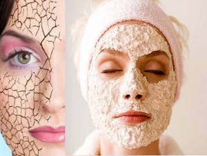 Как найти причину шелушения кожи