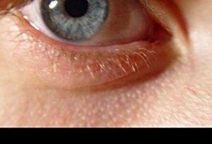 Как называются белые точки на лице