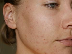 Как бороться с угрями на лице