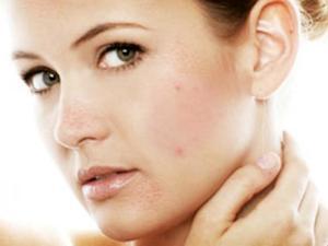 Как следить за кожей лица