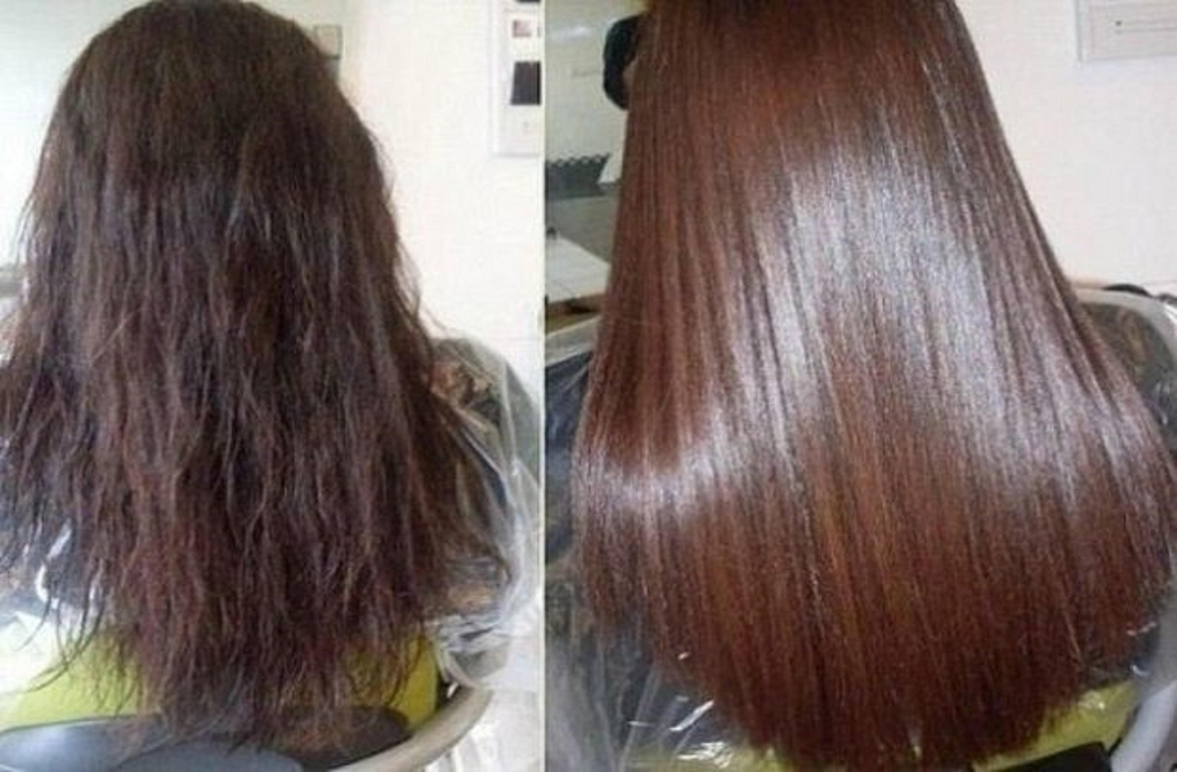 Как использовать димексид для волос Рецепты масок и правила применения