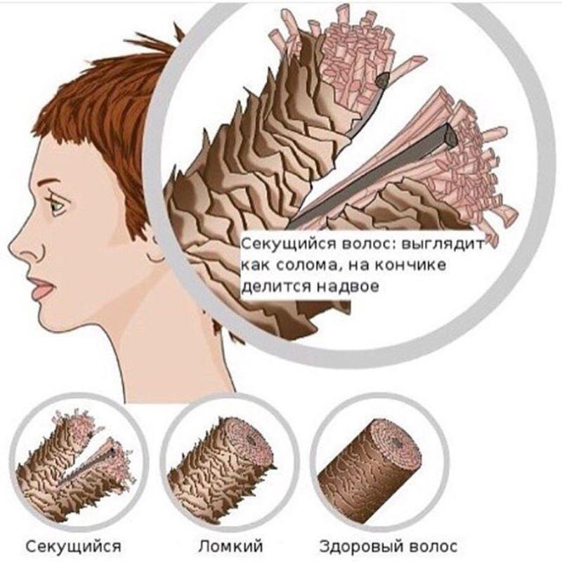 Что от ломкости и сечения волосы в домашних условиях 385